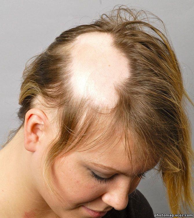 Фолликулы и простимулирует рост и восстановление поврежденных волос а обыкновенная